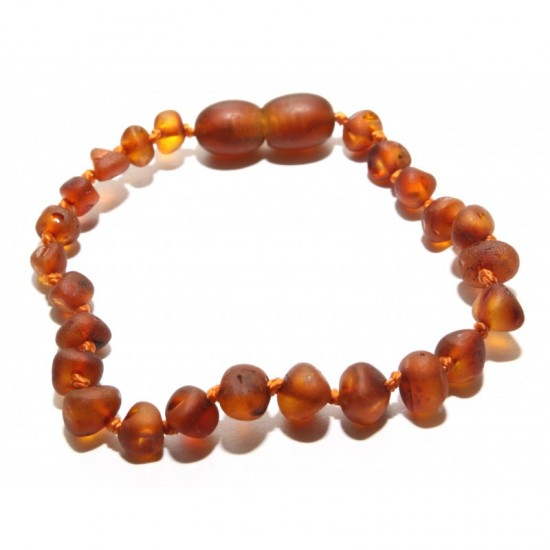 Raw baltic amber baby teething anklet bracelet.