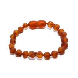 Raw baltic amber baby teething anklet bracelet